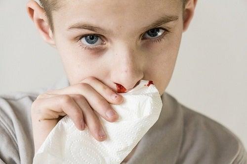 Krwawienie z nosa u dzieci – przyczyny i leczenie