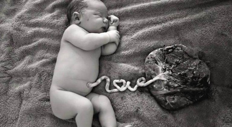 Noworodek leżący na ręczniku połączony pępowiną z wyjętym łożyskiem