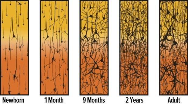 Przekroje tkanki mózgowej dziecka w różnym wieku - rozwój mózgu dziecka