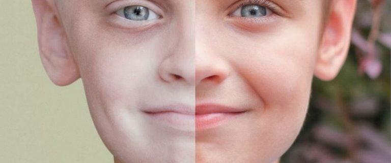 Z lewej strony pół twarzy dziecka chorego na białaczkę, z prawej - zdrowego