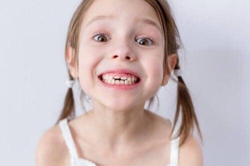 Wypadanie zębów mlecznych: co warto wiedzieć
