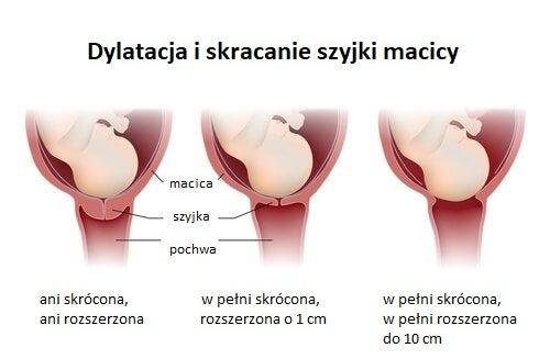 Dylatacja szyjki macicy