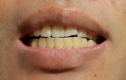 Plamy na zębach stałych u dzieci i dorosłych