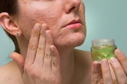 Kobieta smarująca twarz z bliznami po trądziku żelem z aloesu - zmniejszanie blizn