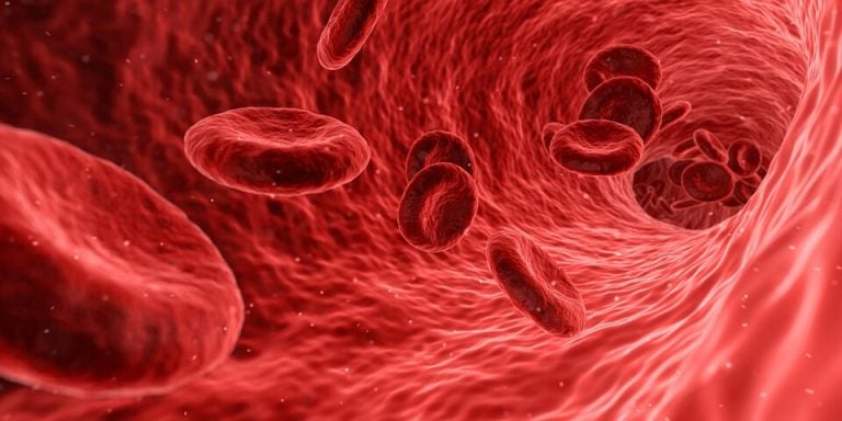 Komórki krwi płynące w żyle - zespół Hughesa i powikłania