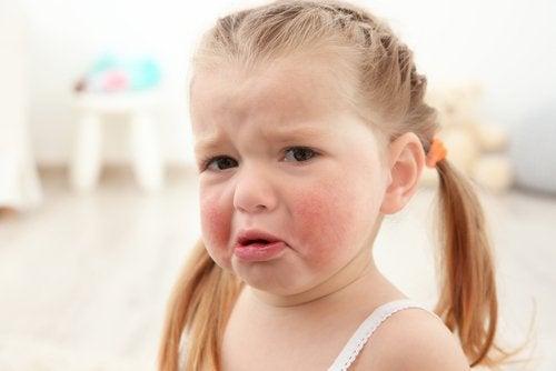 Płacząca dziewczynka ze spuchniętymi, czerwonymi policzkami - alergie pokarmowe u dzieci