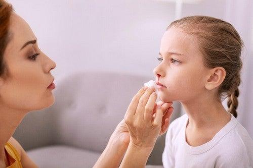 Krwawienie z nosa u dzieci – jak temu zapobiegać i leczyć?