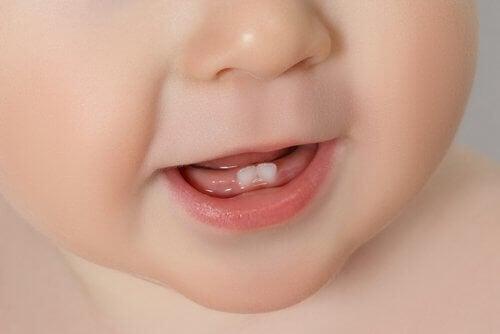 Pierwsze zęby u dziecka