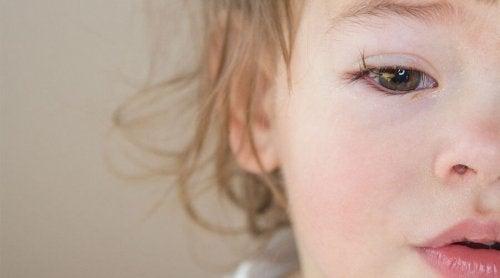 Dziecko z czerwonymi oczami
