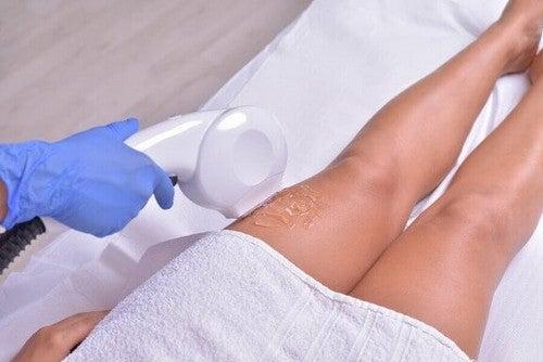 Depilacja laserowa na nogach