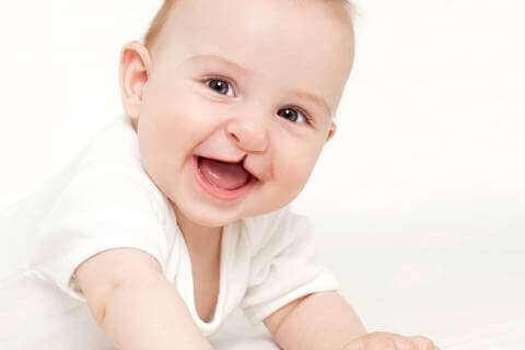 Dziecko z rozszczepioną wargą - anomalie twarzoczaszki