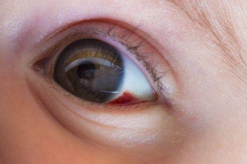 Czerwona plama w oku