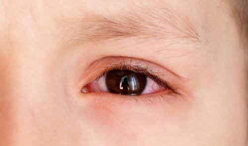 Wysięk choroidalny i jego przyczyny u dzieci