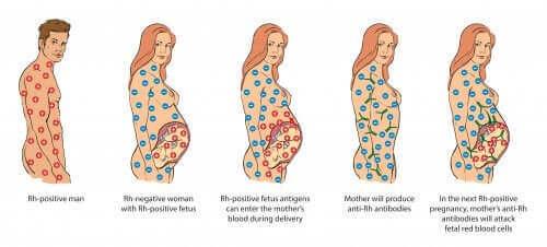 Konflikt serologiczny w ciąży