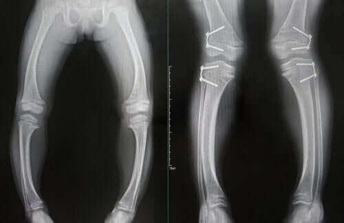 Krzywe kości